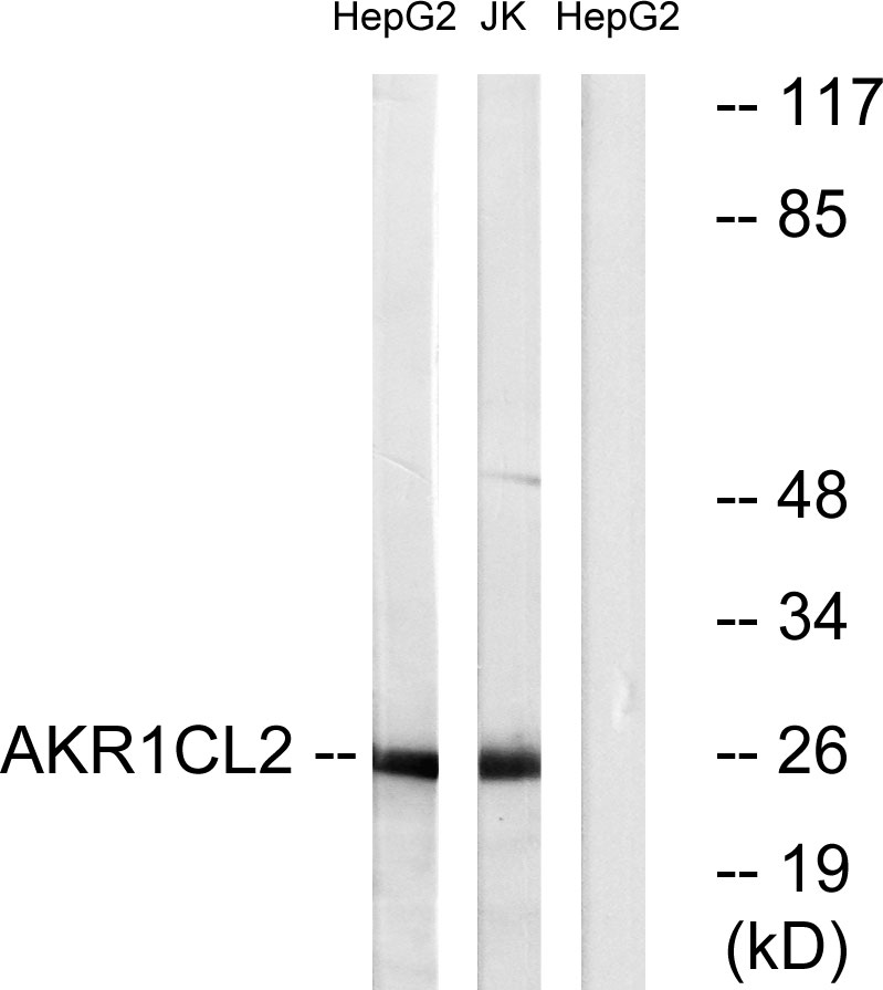 AKR1E2 Antibody (OAAF03257) in HepG2, Jurkat cells using Western Blot