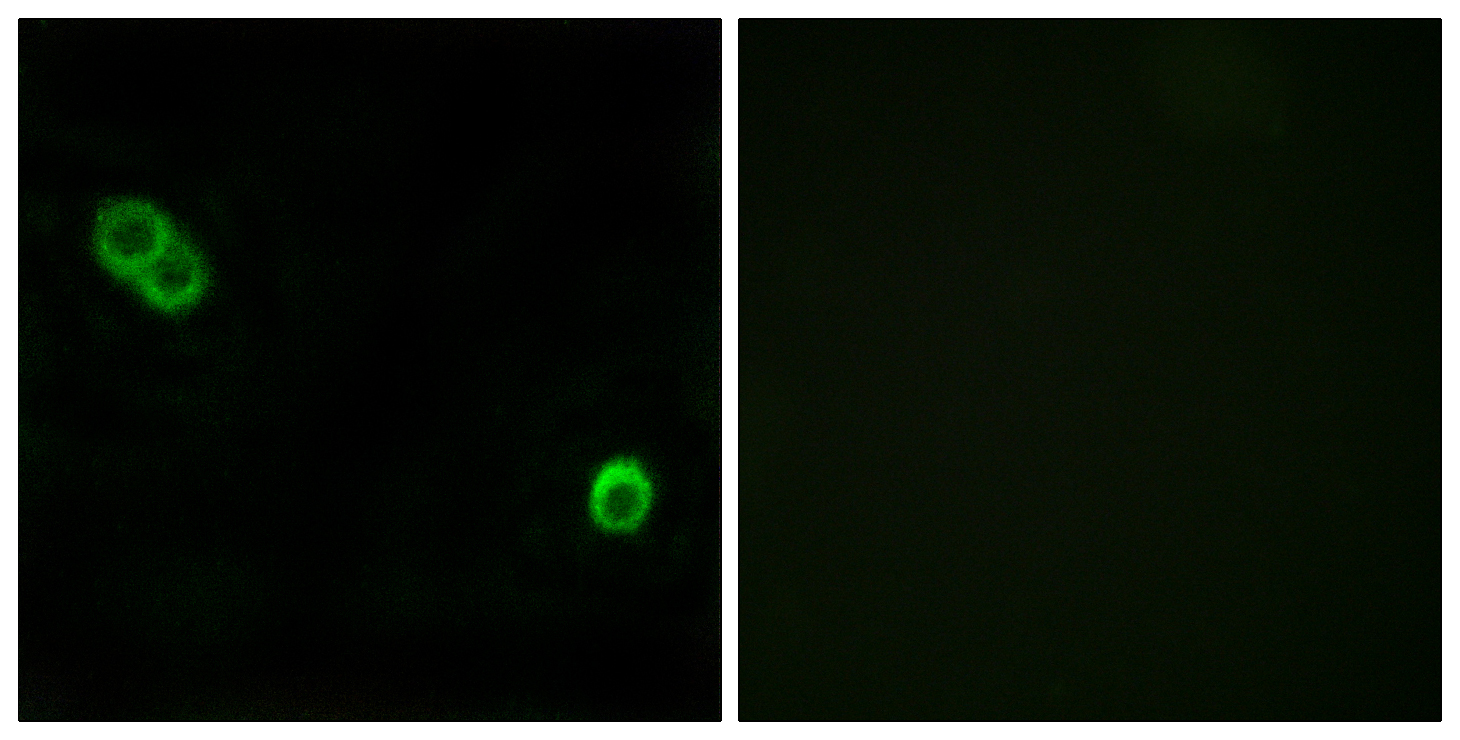 ACER3 Antibody (OAAF03261) in MCF-7 cells using Immunofluorescence