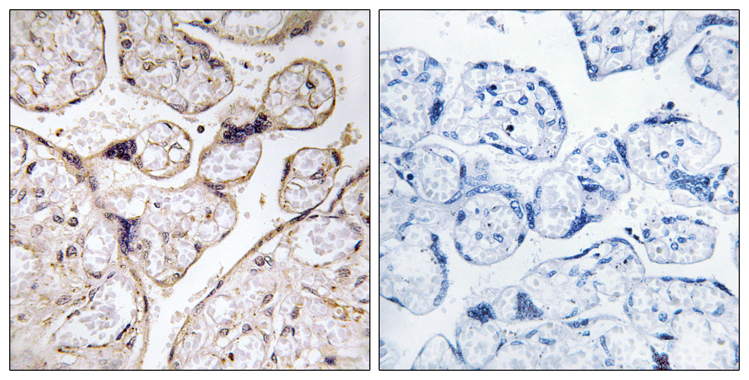 ACER3 Antibody (OAAF03261) in Human placenta cells using Immunohistochemistry