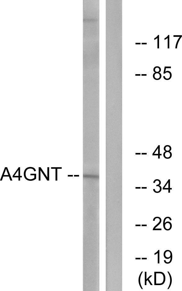 A4GNT Antibody (OAAF03262) in K562 cells using Western Blot