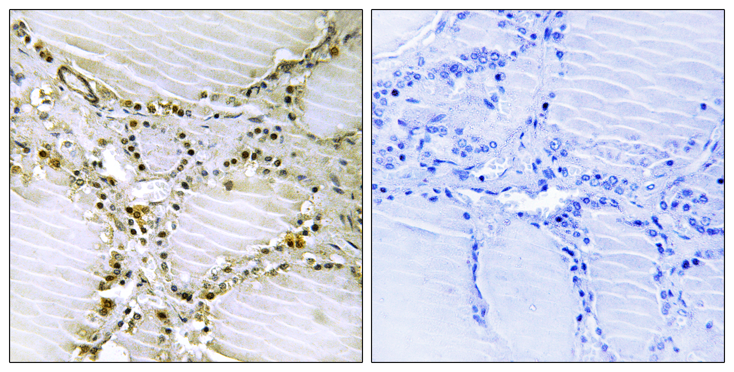AMPD1 Antibody (OAAF03267) in Human thyroid gland cells using Immunohistochemistry