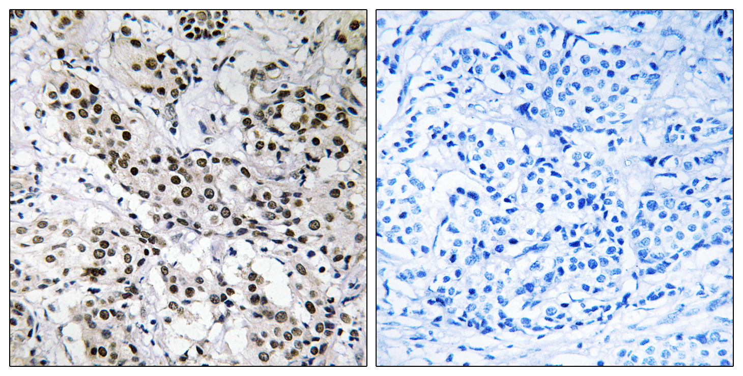 APBB2 Antibody (OAAF03273) in Human breast carcinoma cells using Immunohistochemistry