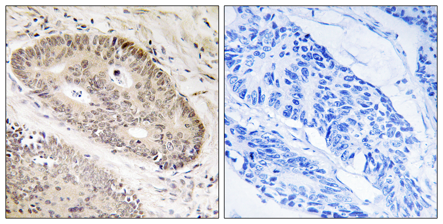 CARF Antibody (OAAF03279) in Human lung carcinoma cells using Immunohistochemistry