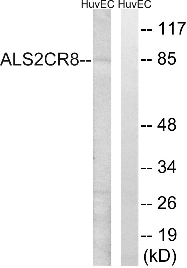 CARF Antibody (OAAF03279) in HuvEc cells using Western Blot