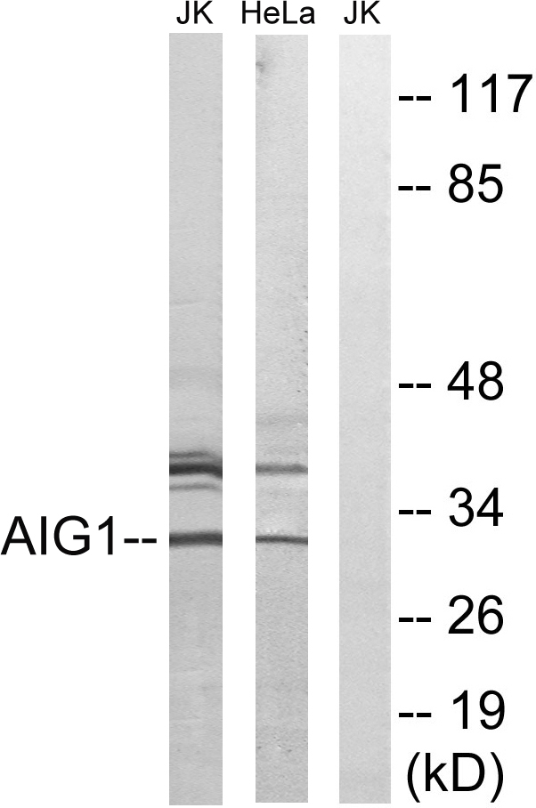 AIG1 Antibody (OAAF03281) in Jurkat, HeLa cells using Western Blot
