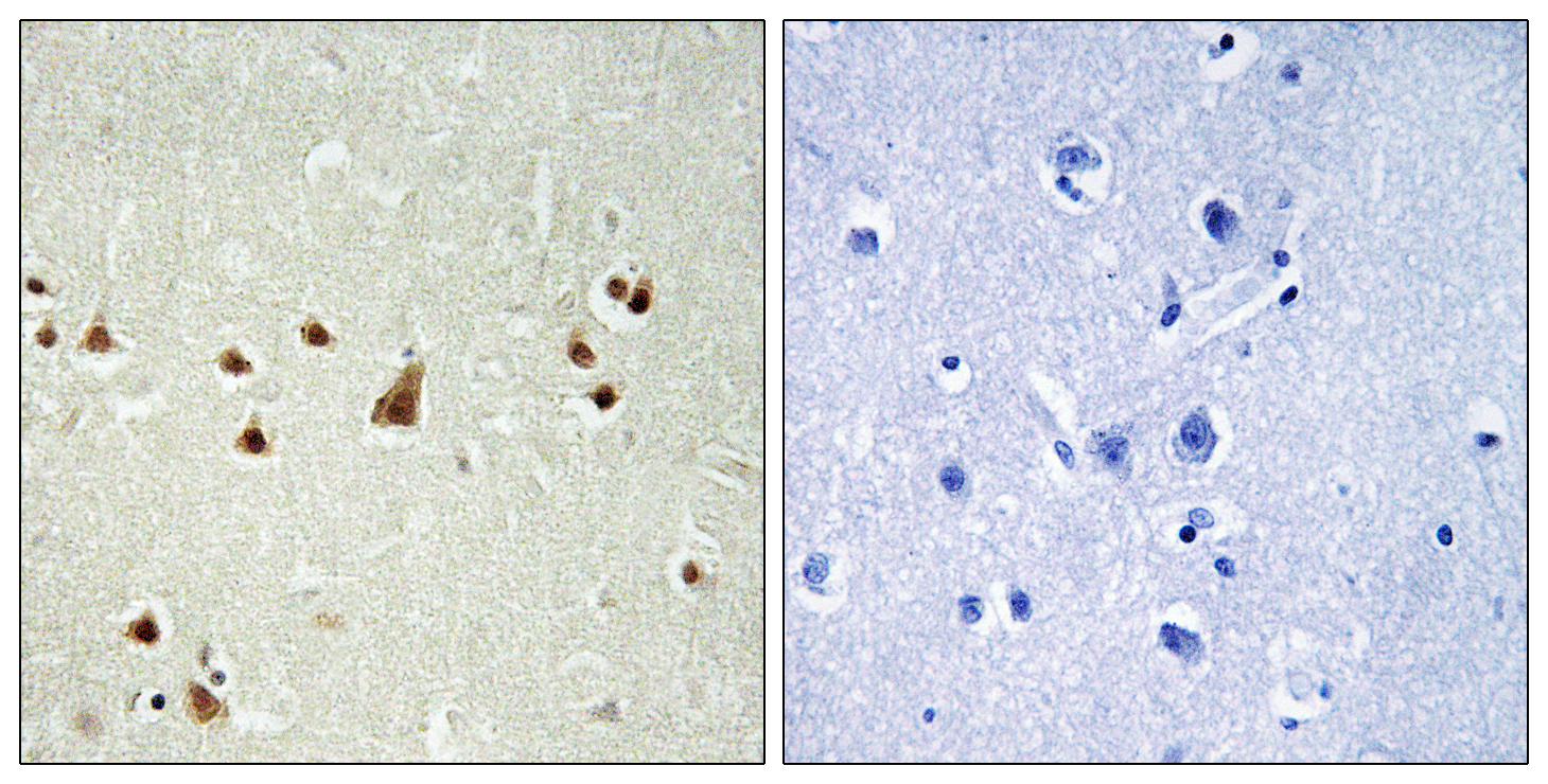 ANKRD26 Antibody (OAAF03286) in Human brain cells using Immunohistochemistry