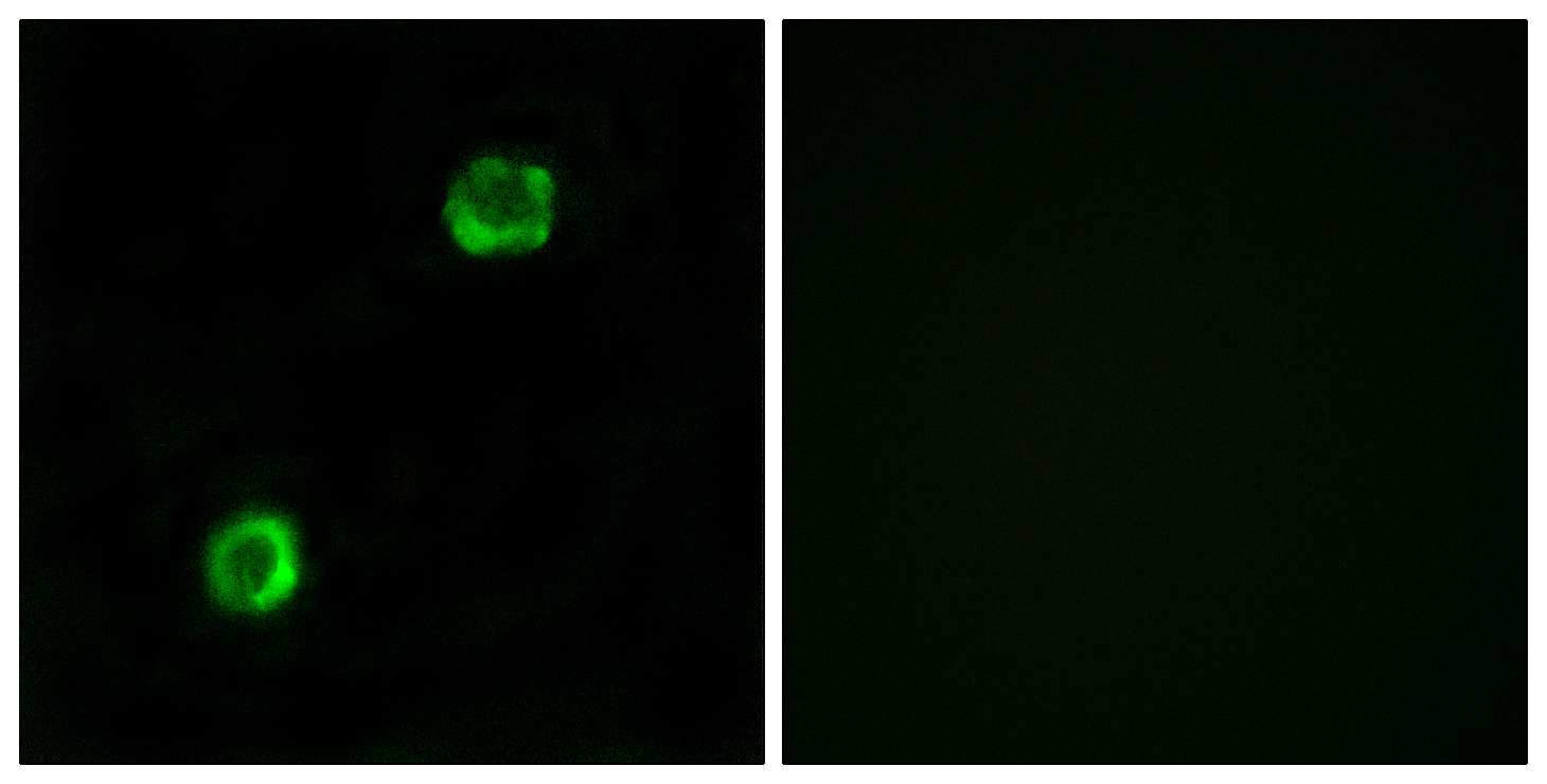 APOL2 Antibody (OAAF03294) in MCF-7 cells using Immunofluorescence