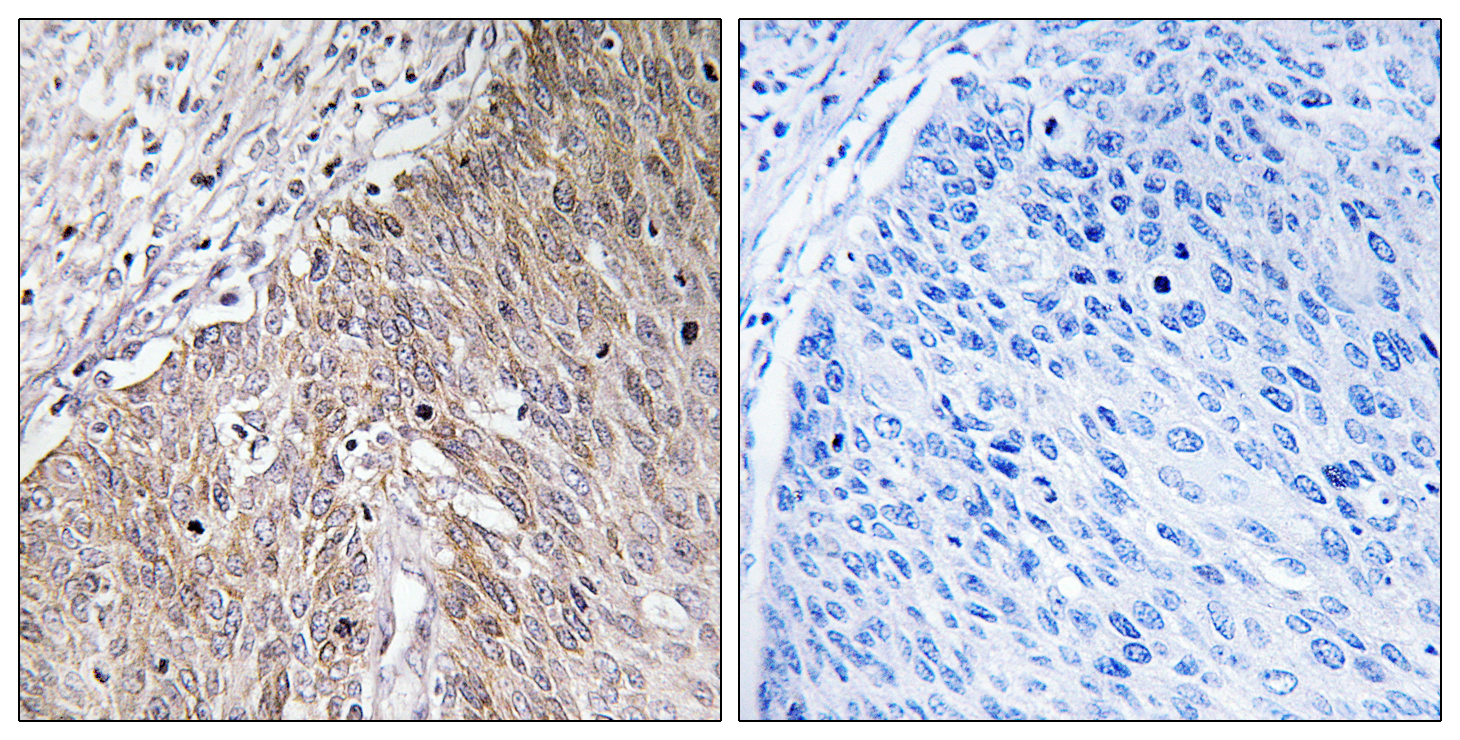 APOL2 Antibody (OAAF03294) in Human cervix carcinoma cells using Immunohistochemistry