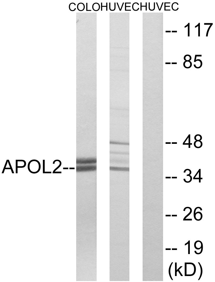 APOL2 Antibody (OAAF03294) in COLO, HUVEC cells using Western Blot