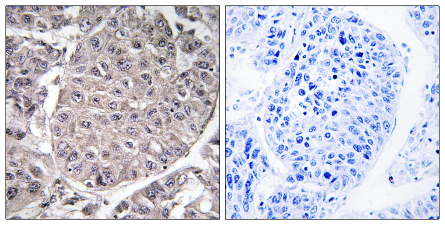 APOL4 Antibody (OAAF03295) in Human liver carcinoma cells using Immunohistochemistry