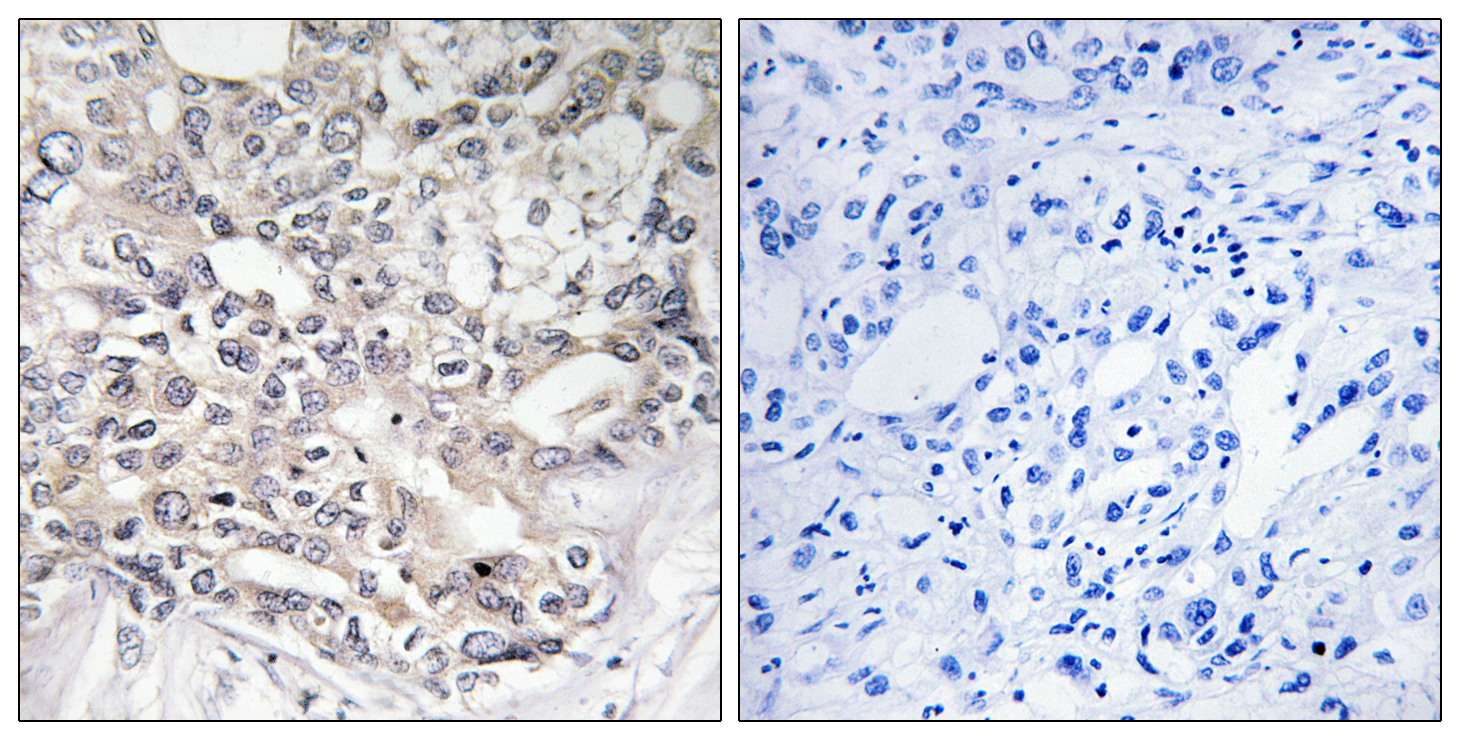 APOL5 Antibody (OAAF03296) in Human liver carcinoma cells using Immunohistochemistry
