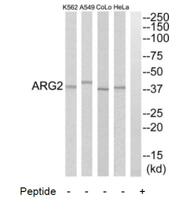 ARG2 Antibody (OAAF03303) in HeLa, A549, COLO205, K562 cells using Western Blot