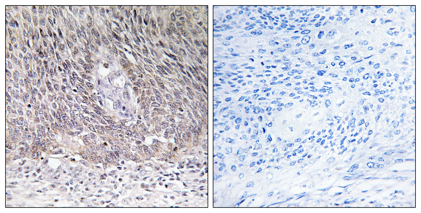 ARSA Antibody (OAAF03305) in Human cervix carcinoma cells using Immunohistochemistry