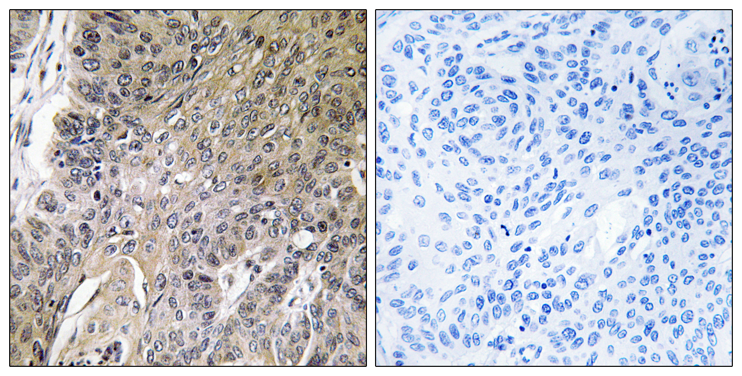 ARSG Antibody (OAAF03310) in Human lung carcinoma cells using Immunohistochemistry