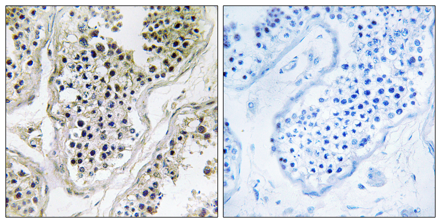 ATXN7L1 Antibody (OAAF03315) in Human testis cells using Immunohistochemistry