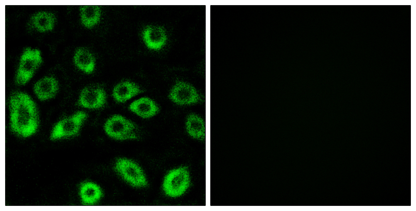 ATP5D Antibody (OAAF03317) in A549 cells using Immunofluorescence