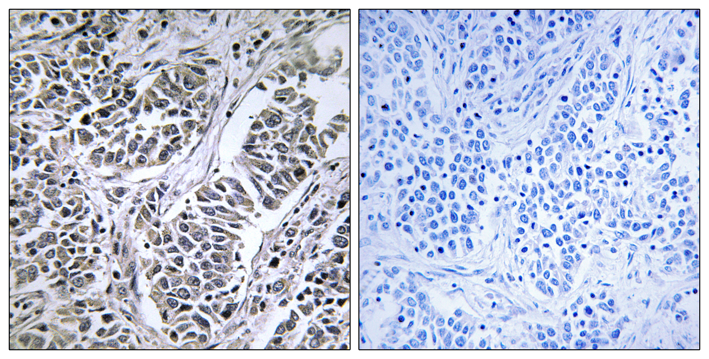 ATP5D Antibody (OAAF03317) in Human lung carcinoma cells using Immunohistochemistry