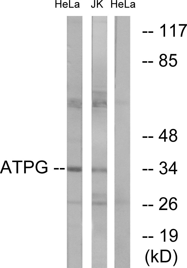 ATP5C1 Antibody (OAAF03319) in HeLa, Jurkat cells using Western Blot