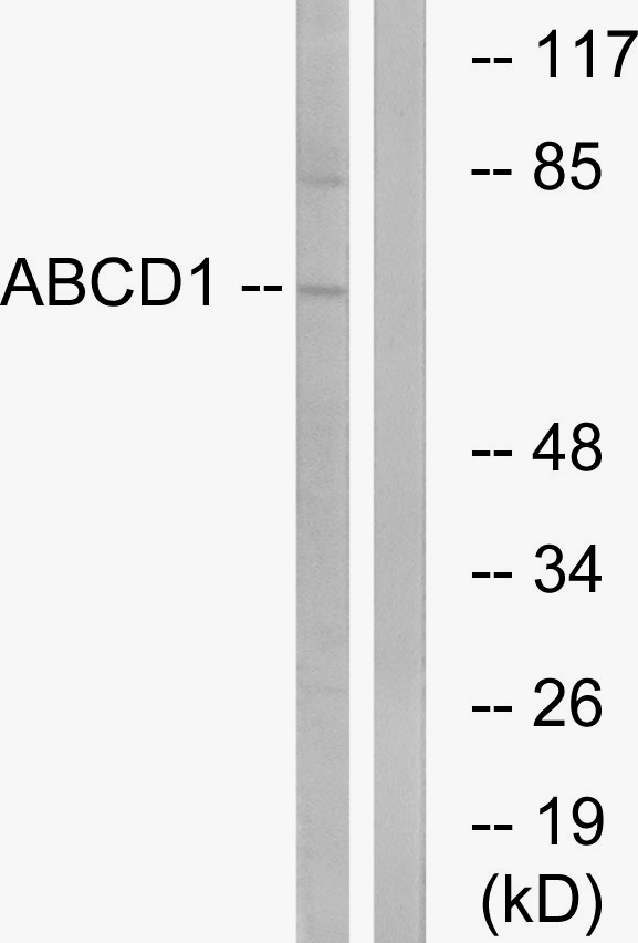 ABCD1 Antibody (OAAF03331) in Jurkat cells using Western Blot