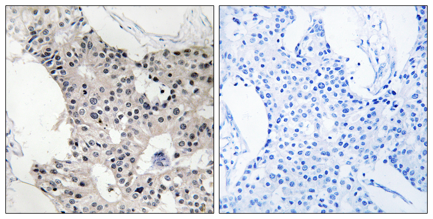 BAGE4 Antibody (OAAF03353) in Human breast carcinoma cells using Immunohistochemistry