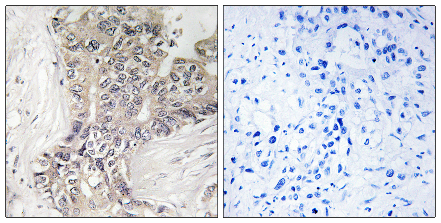 B3GALTL Antibody (OAAF03366) in Human liver carcinoma cells using Immunohistochemistry