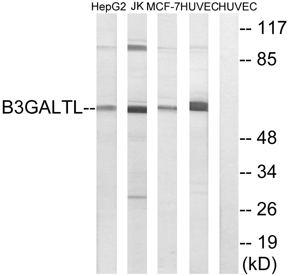 B3GALTL Antibody (OAAF03366) in HepG2, Jurkat, MCF-7, HUVEC cells using Western Blot