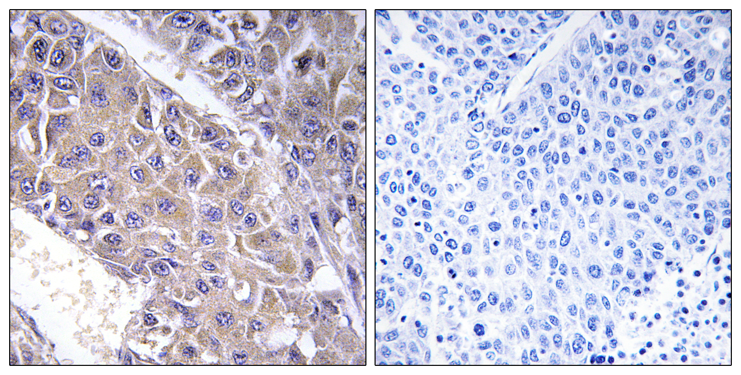 B4GALT3 Antibody (OAAF03371) in Human liver carcinoma cells using Immunohistochemistry