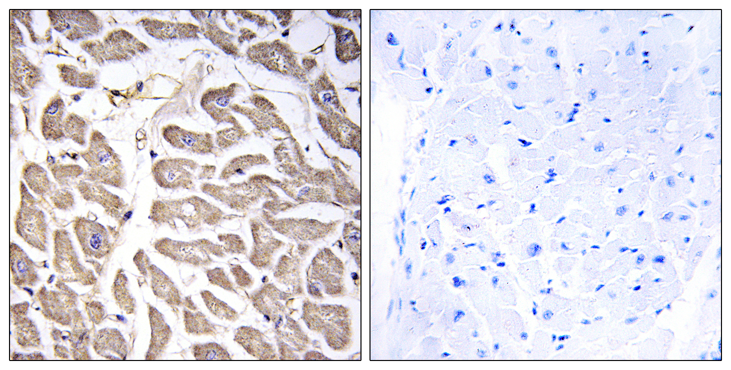 BRWD3 Antibody (OAAF03396) in Human heart cells using Immunohistochemistry