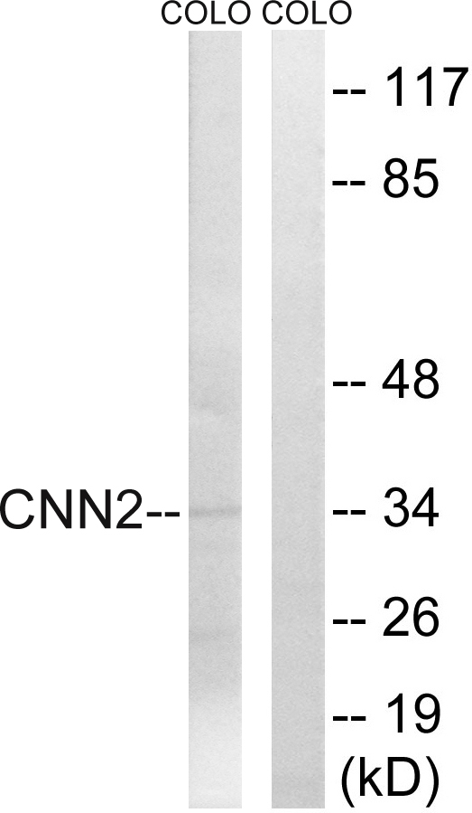 CNN2 Antibody (OAAF03410) in HUVEC cells using Western Blot
