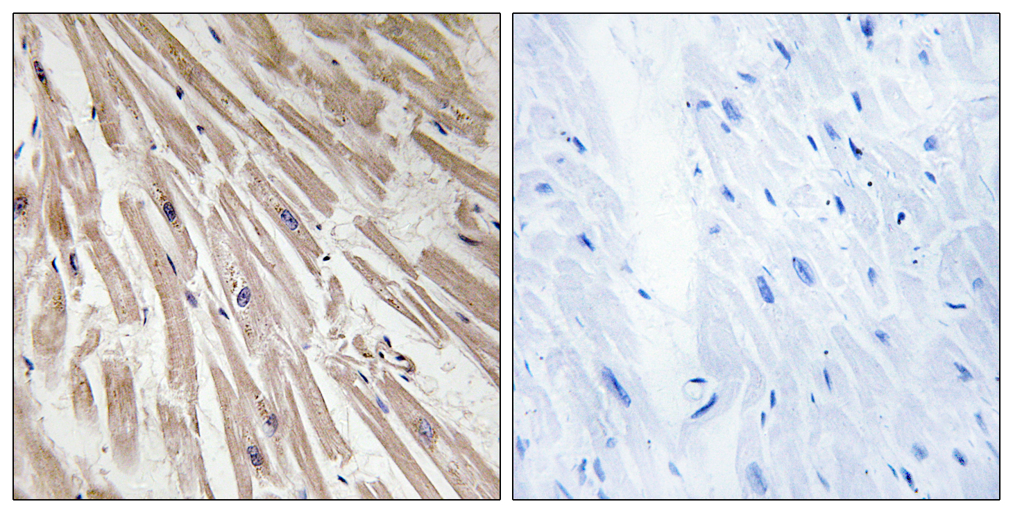 ARPP21 Antibody (OAAF03413) in Human heart cells using Immunohistochemistry