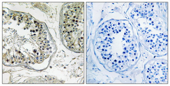 CHST13 Antibody (OAAF03424) in Human testis cells using Immunohistochemistry