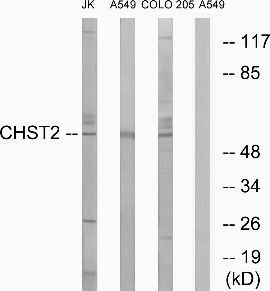 CHST2 Antibody (OAAF03425) in Jurkat, A549, COLO cells using Western Blot