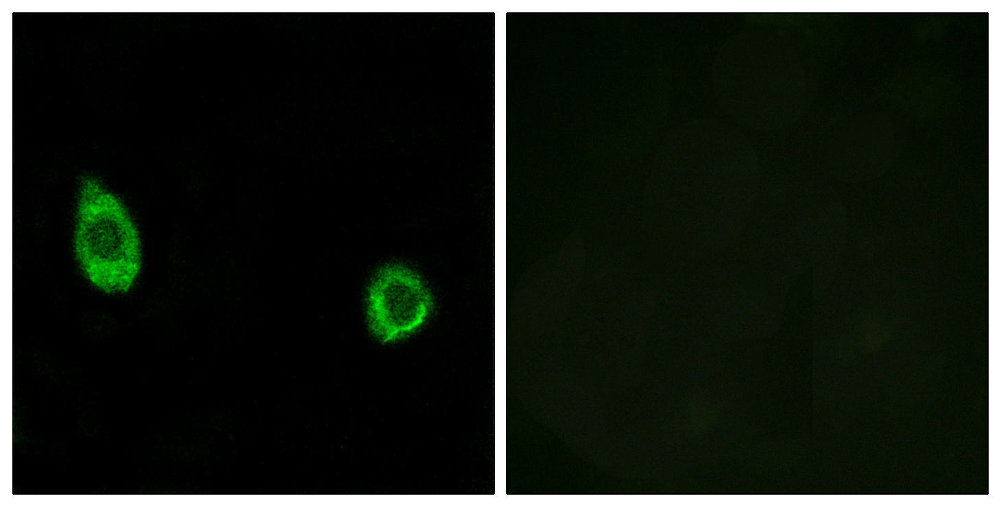 CHST9 Antibody (OAAF03428) in HuvEc cells using Immunofluorescence