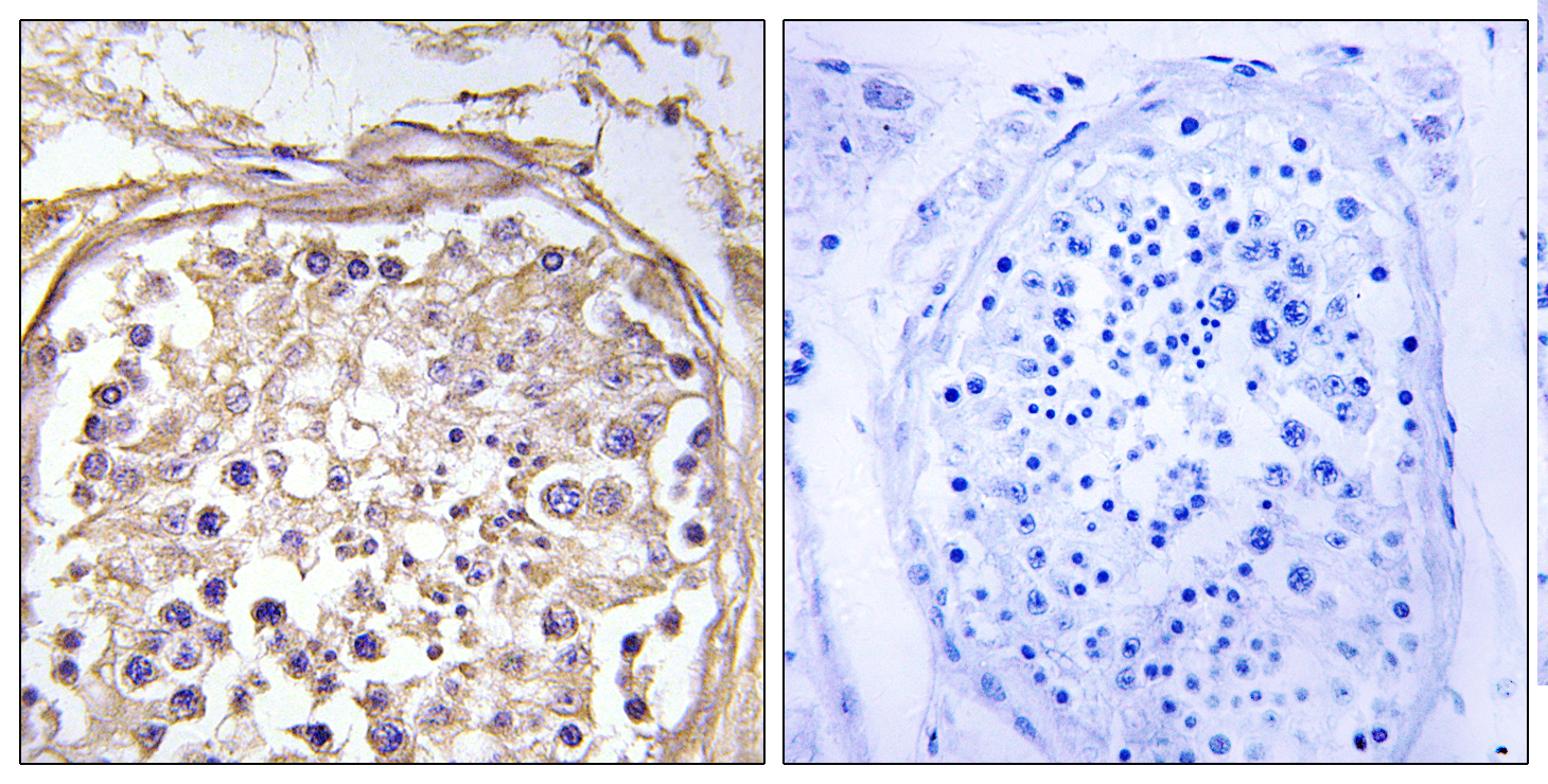 CHST9 Antibody (OAAF03428) in Human breast carcinoma cells using Immunohistochemistry