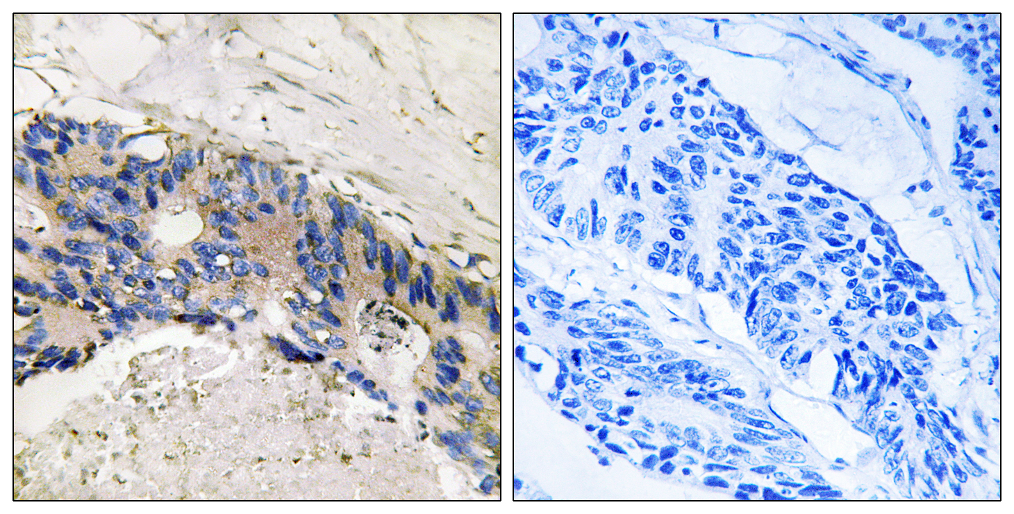CA1 Antibody (OAAF03429) in Human colon carcinoma cells using Immunohistochemistry