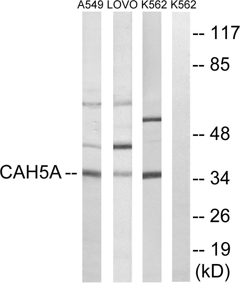 CA5A Antibody (OAAF03434) in A549, LOVO, K562 cells using Western Blot