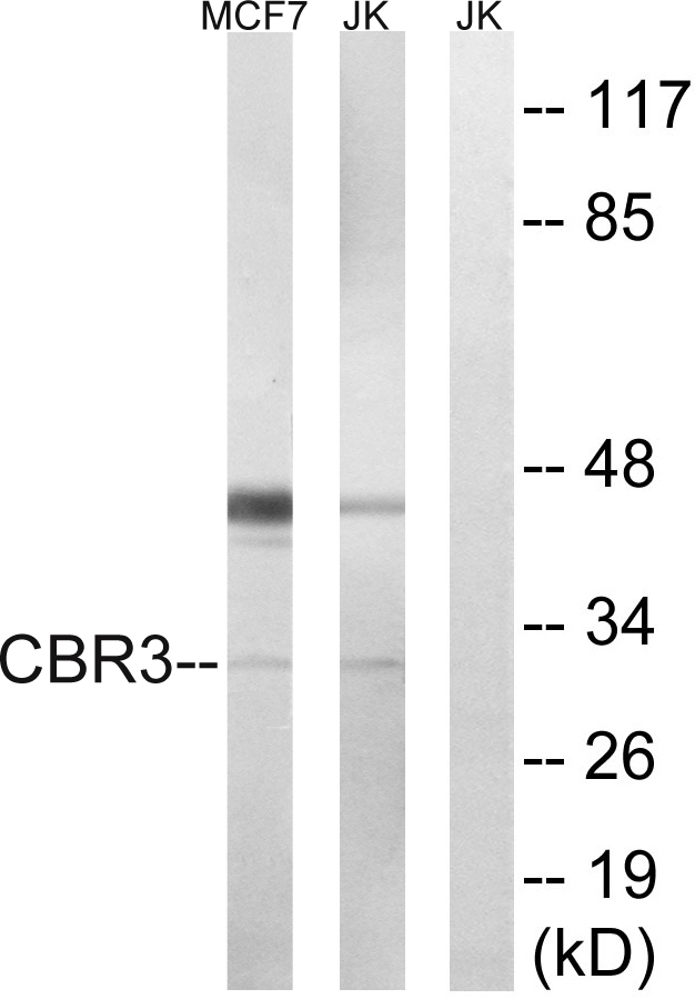 CBR3 Antibody (OAAF03438) in MCF7, Jurkat cells using Western Blot