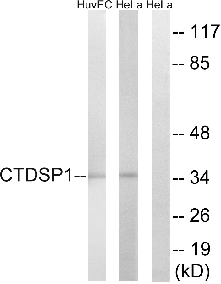 CTDSP1 Antibody (OAAF03448) in HUVEC, HeLa cells using Western Blot