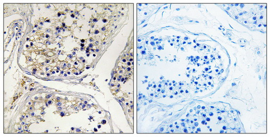 CPT1B Antibody (OAAF03450) in Human testis cells using Immunohistochemistry
