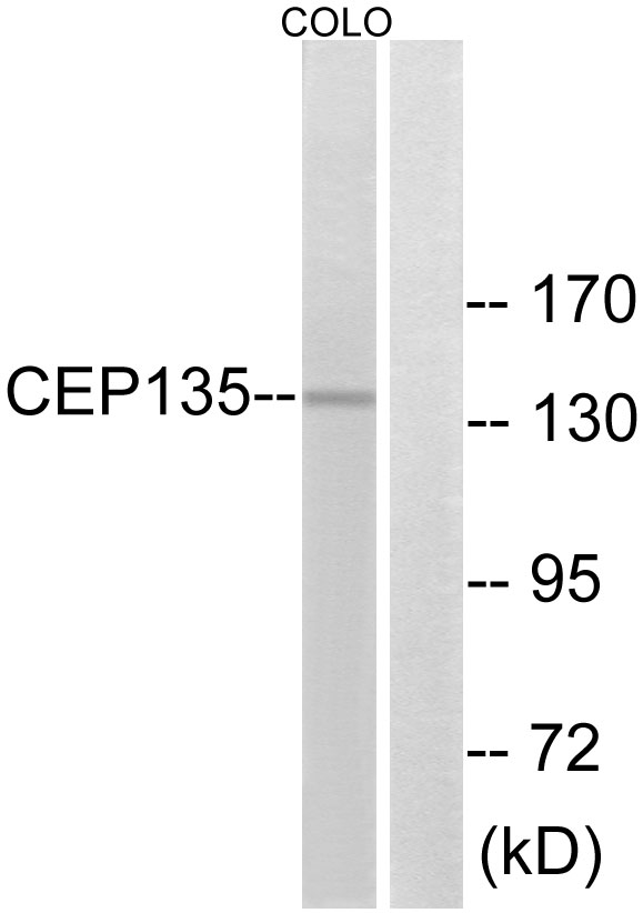 CEP135 Antibody (OAAF03464) in COLO cells using Western Blot
