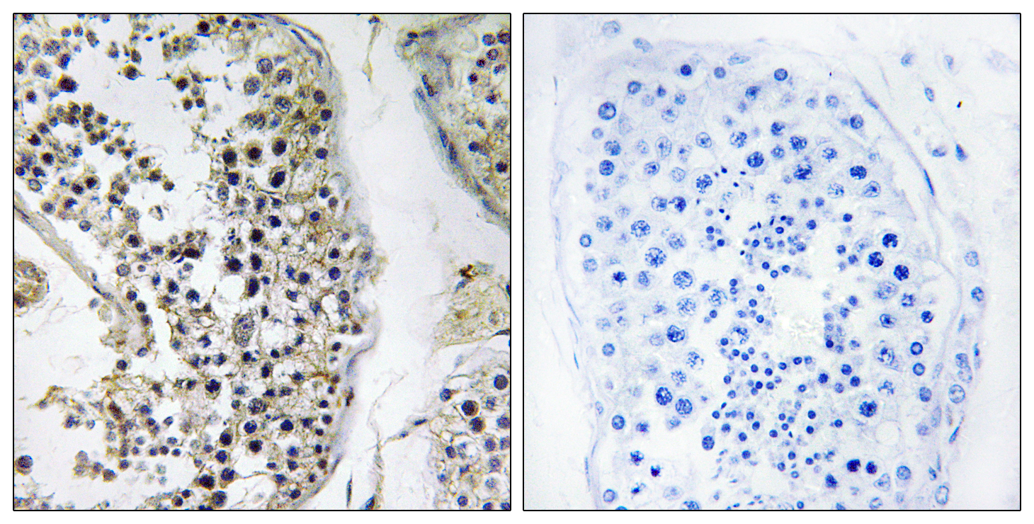 CEP170 Antibody (OAAF03466) in Human testis cells using Immunohistochemistry