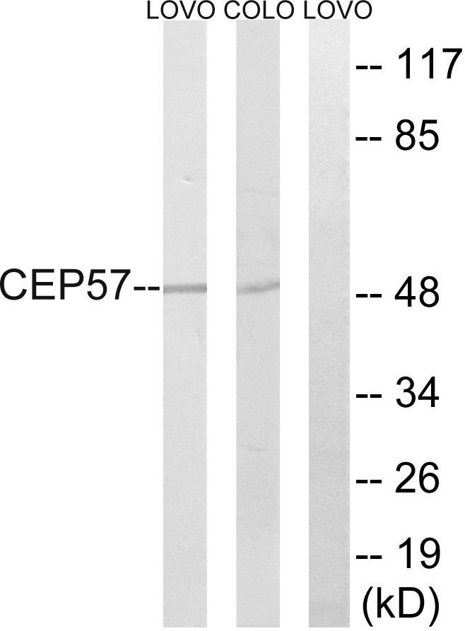 CEP57 Antibody (OAAF03469) in LOVO, COLO cells using Western Blot