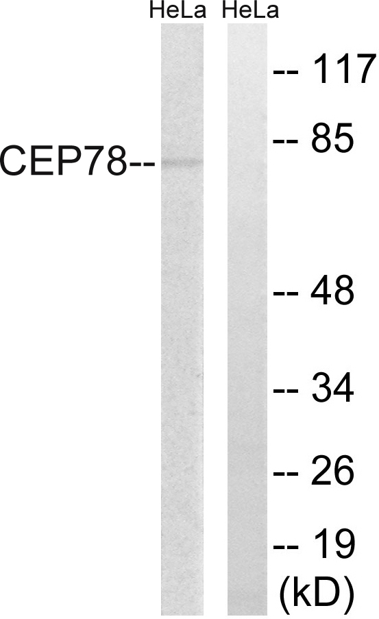 CEP78 Antibody (OAAF03472) in HeLa cells using Western Blot