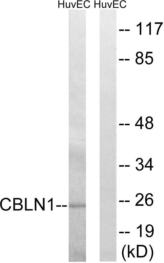 CBLN1 Antibody (OAAF03474) in HUVEC cells using Western Blot