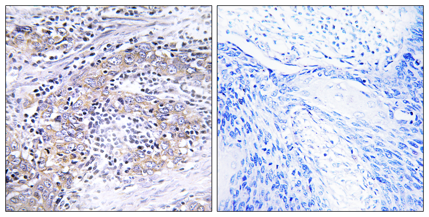 CLN6 Antibody (OAAF03480) in Human cervix cells using Immunohistochemistry