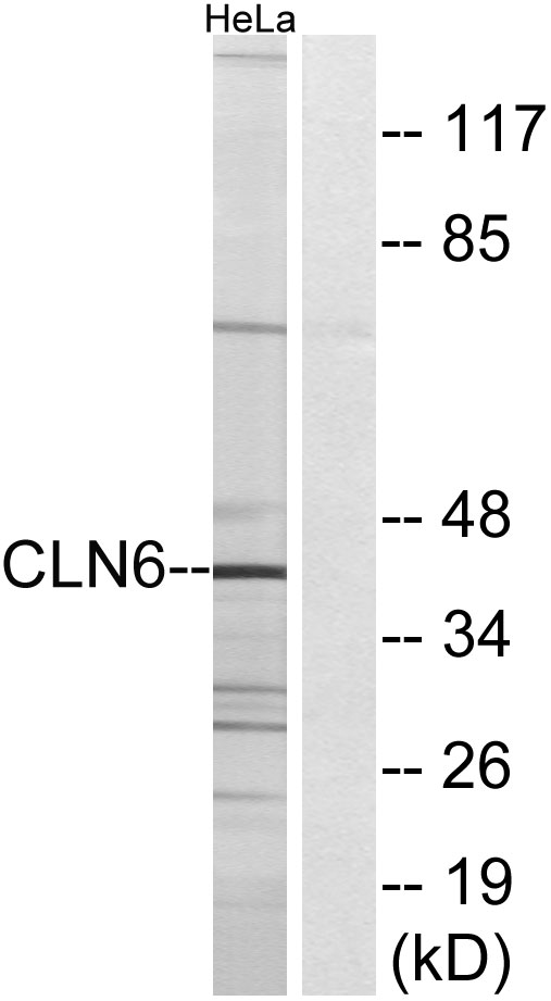 CLN6 Antibody (OAAF03480) in HeLa cells using Western Blot