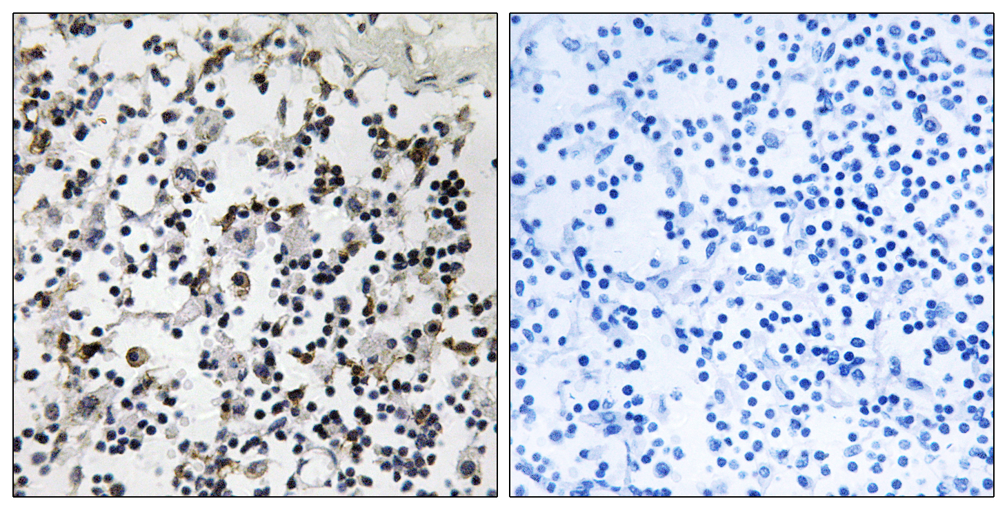 CLIC4 Antibody (OAAF03488) in Human lymph node cells using Immunohistochemistry