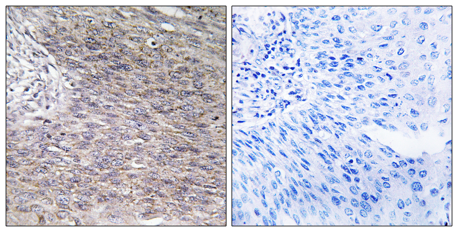 CHPF Antibody (OAAF03494) in Human cervix carcinoma cells using Immunohistochemistry