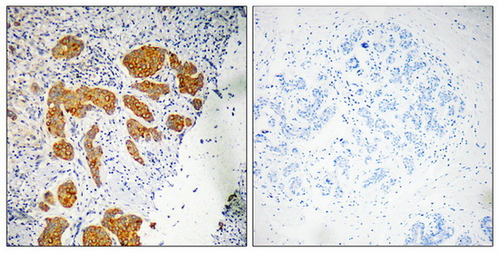 CMTM4 Antibody (OAAF03500) in Human breast carcinoma cells using Immunohistochemistry