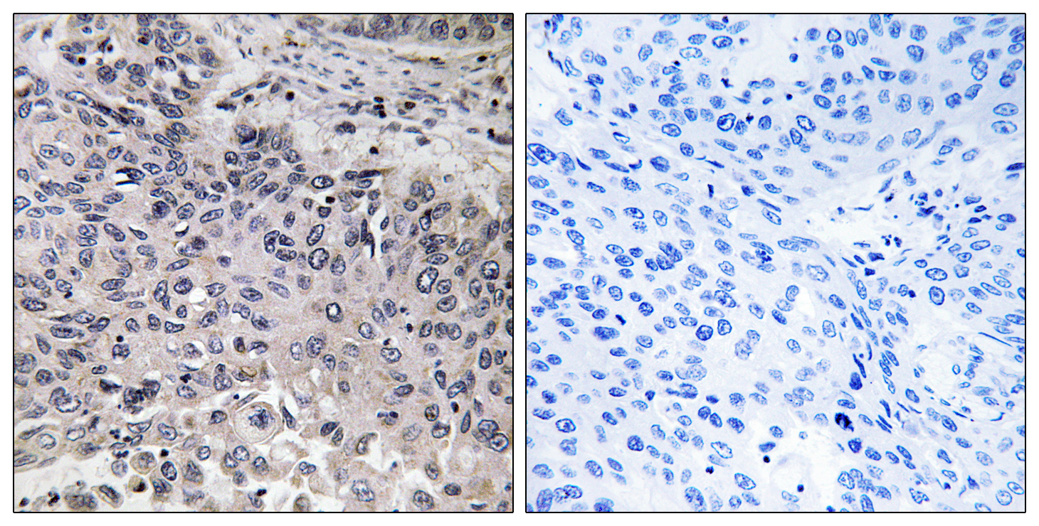 C1QC Antibody (OAAF03517) in Human lung carcinoma cells using Immunohistochemistry